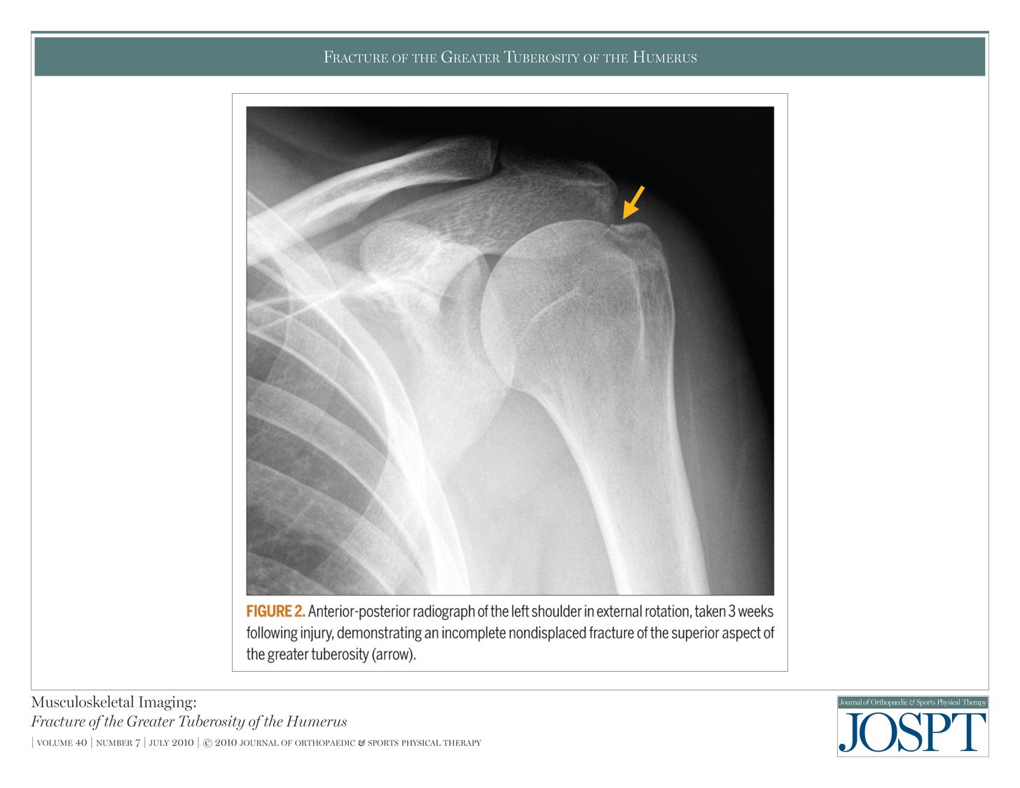 大 上 結節 骨折 腕骨